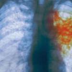 В Черновцах с начала года снизился уровень заболеваемости туберкулезом