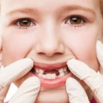 5 мифов об уходе за зубами, которые стоит забыть