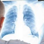 На Буковине снизился уровень заболеваемости туберкулезом