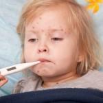 У ребенка с Глыбоцкого района клинически диагностировали корь