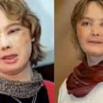 Умерла женщина, которой первой в мире пересадили лицо