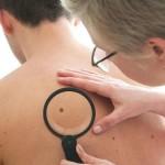 Черновчане смогут бесплатно обследоваться на наличие меланомы