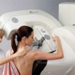 На Буковине каждый третий случай рака молочной железы фиксируют на запущенной стадии