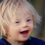 Сегодня в мире отмечают Международный день людей с синдромом Дауна
